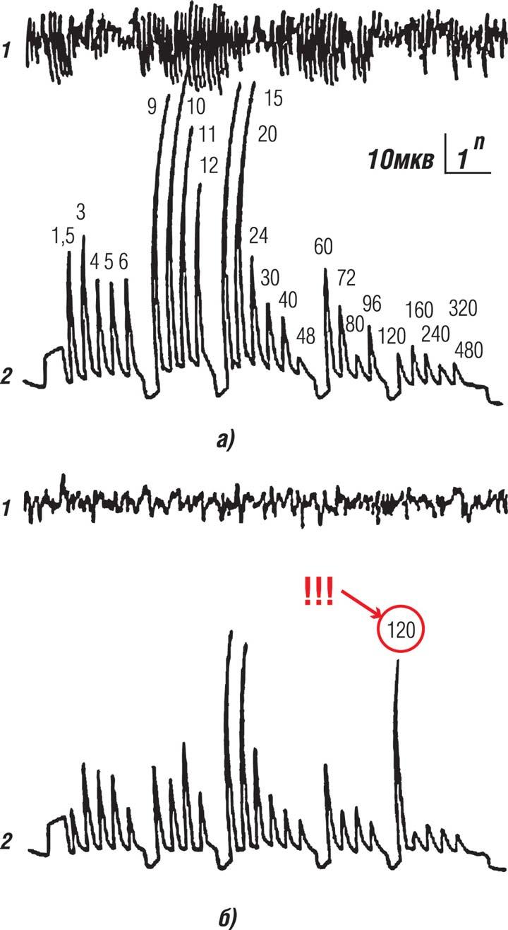 измерение ЭЭГ головного мозга человека при пульсации света