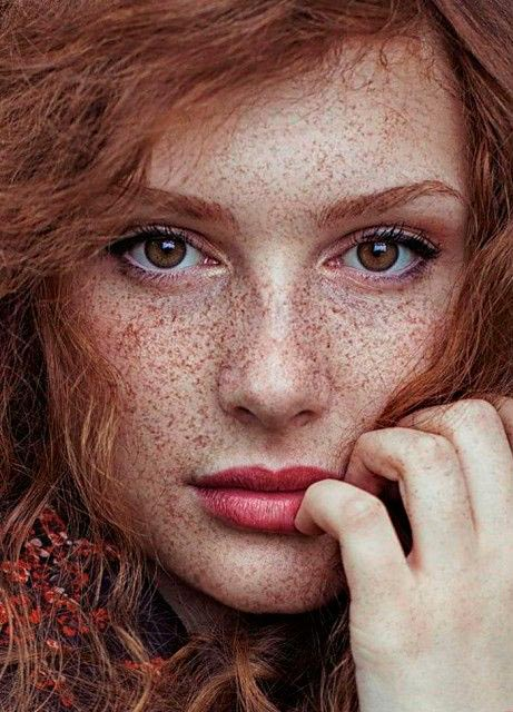 веснушки на лице девушки откуда берутся и как избавиться