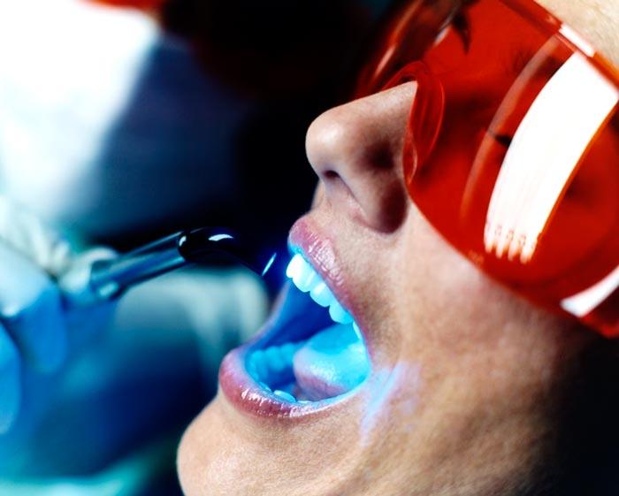 защитные очки при обработке ультрафиолетом