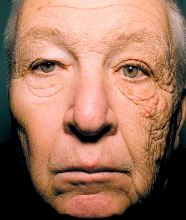 лицо человека после облучения ультрафиолетом