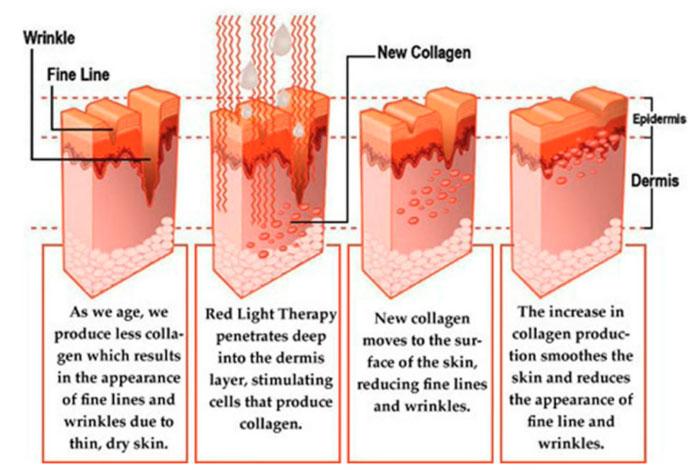 воздействие коллагена на кожу